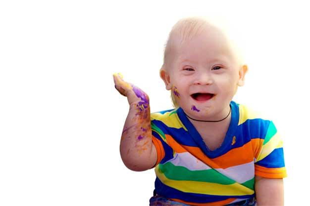 سندرم داون در کودکان چیست؟ انواع ان علتها و معالجه